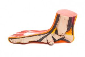 flat feet children's podiatrist Melbourne