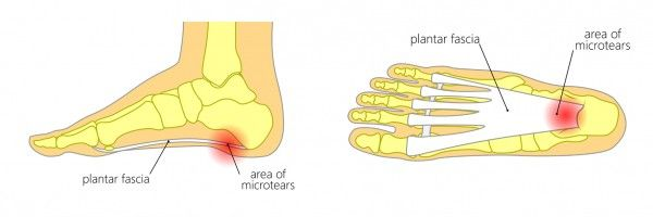 plantar fasciitis treatment Melbourne