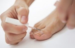 fungal toenail treatment Camberwell, Melbourne