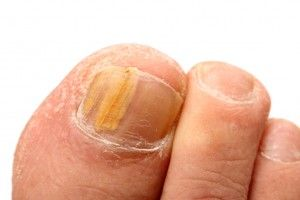 Nail fungus treatment in Camberwell, Melbourne