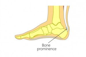 heel pain treatment Melbourne
