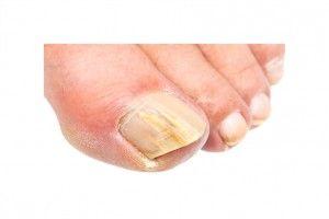 Fungal nails Melbourne podiatrist