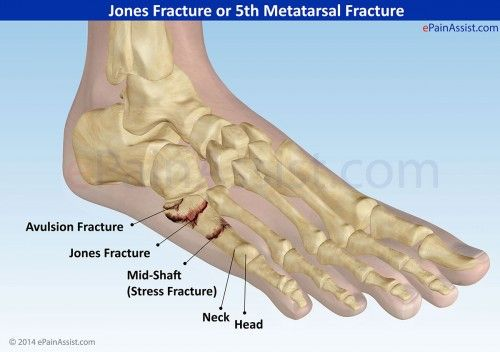 Jones fracture foot injury