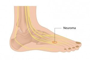 neuroma treatment