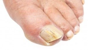 nail fungus treatment Camberwell Melbourne
