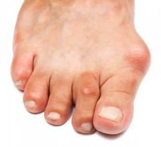 Bunions & Orthotics Melbourne