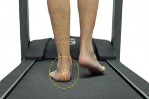 gait analysis Melbourne