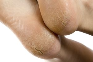 cracked heels Melbourne podiatrist