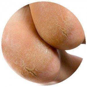 Cracked heel treatment Camberwell