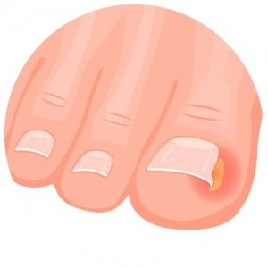 Ingrown toenail treatment Camberwell