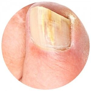 Nail fungus treatment Camberwell
