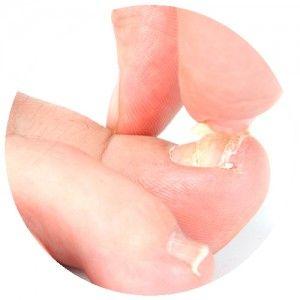 Thickened Toenails | Melbourne Podiatrists & Orthotics | Podiatrist ...
