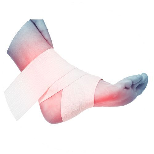 Ankle sprain treatment Camberwell