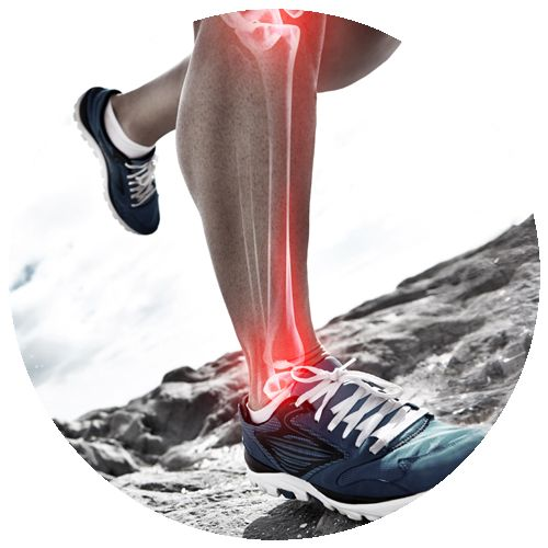 Stress Fractures Sports Podiatry Melbourne Podiatrists Orthotics