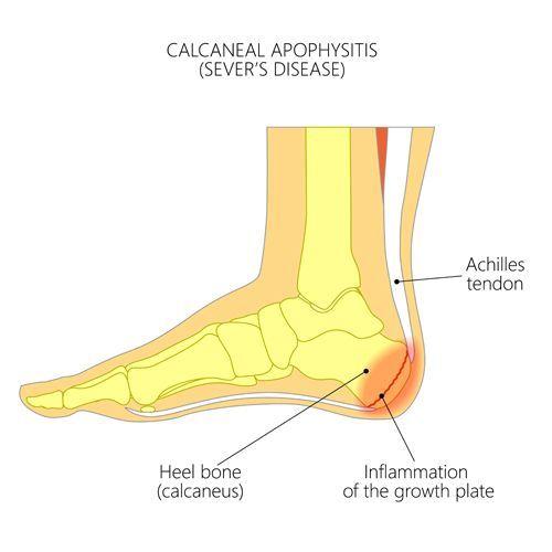 Children's Podiatry Camberwell - Sever's Disease