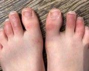 Covid toes podiatrist Melbourne
