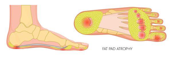 Heel fat pad atrophy treatment Melbourne