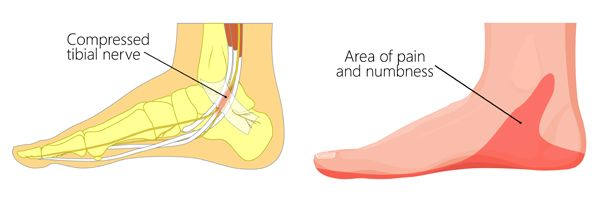 tasal tunnel syndrome treatment Melbourne